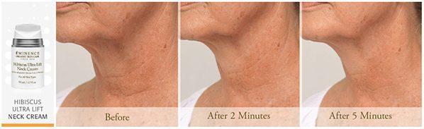 Eminence Organics | Organic Skin Shop | Organic Skin Shop | Buy Eminence | Hibiscus Ultra Lift Neck Cream Results